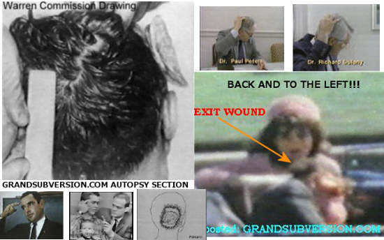 jfk autopsy photos john f kennedy assassination facts pictures