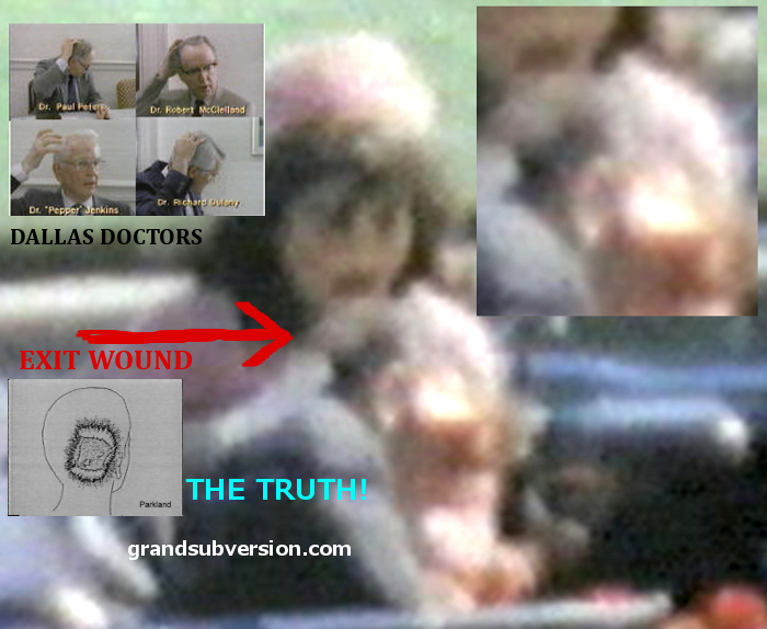 jfk assassination kennedy john f conspiracy theory facts who killed shot photo pic cover up