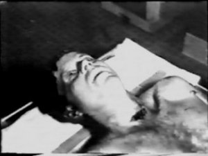 autopsy jfk kennedy assassination photos photographs pictures pic bethesda 01
