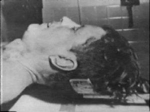 jfk autopsy picture john f kennedy assassination head wound photos bethesda 03