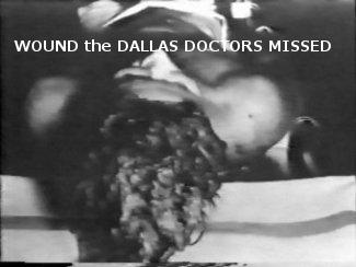 jfk autopsy kennedy assassination gunshots faked photo picture head shot 05